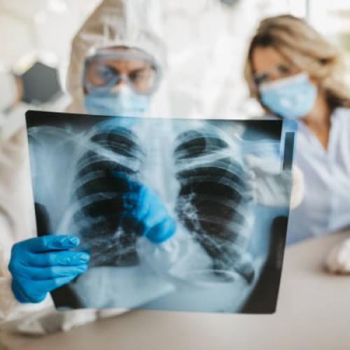 Gripe X Covid-19: saiba como diferenciar os sintomas!